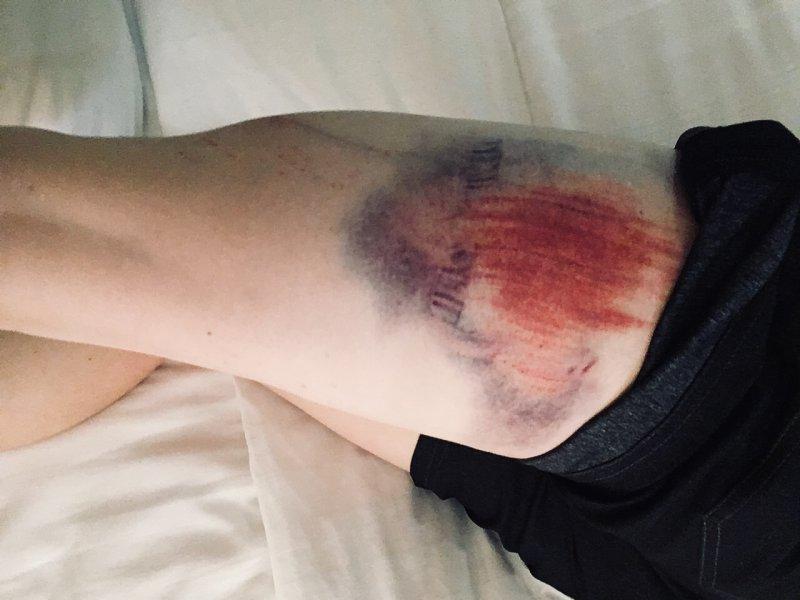 KRistine contento-angell leg bruise at bonelli